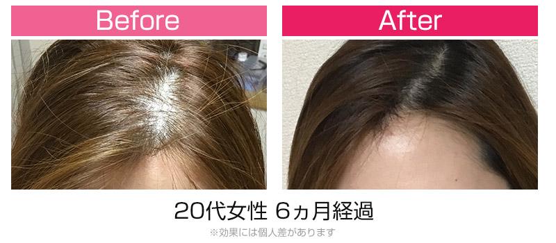 発毛ビフォーアフター1