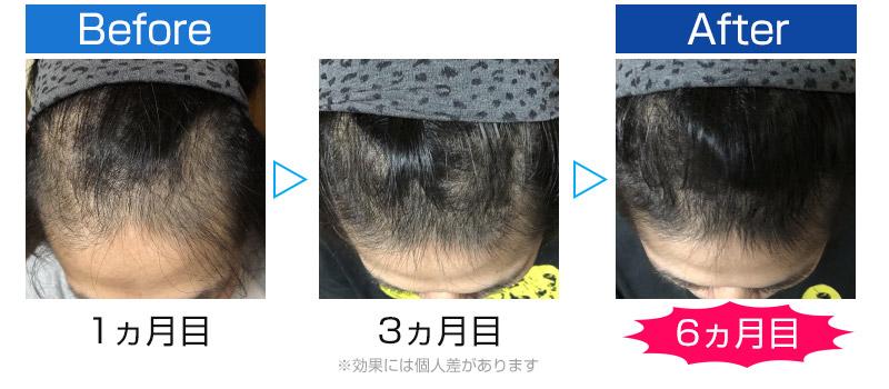 発毛ビフォーアフター4